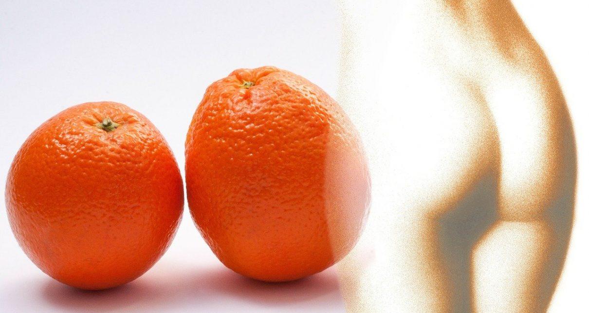 Cómo eliminar la CELULITIS o Piel de Naranja
